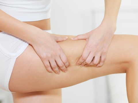 Female squeezes cellulite skin on her legs - close-up fragment