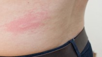 a woman is urticaria on back